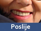 zubne-proteze-poslije