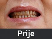 zubne-proteze-prije